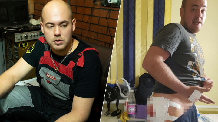 В Екатеринбурге байкер попал в отделение гнойной хирургии после обычного укола