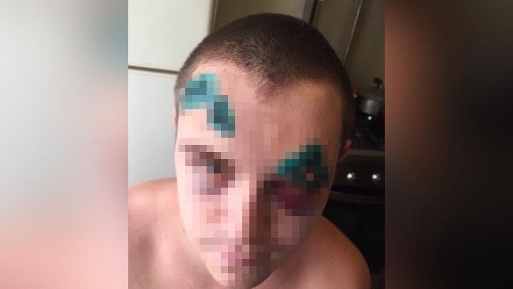 Врачи наложили 21 шов: в Ярославле жестоко избили молодого мужчину