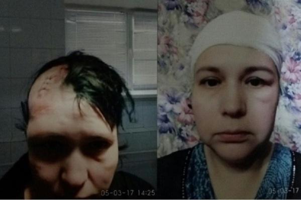 Шрам на голове Алины так и не зарос волосами и будет виден всю оставшуюся жизнь