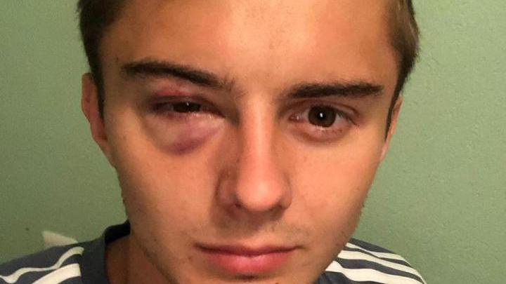 «Хватит валяться!»: полузащитник «Ростова» рассказал о грубом поведении арбитра на матче с «Уфой»