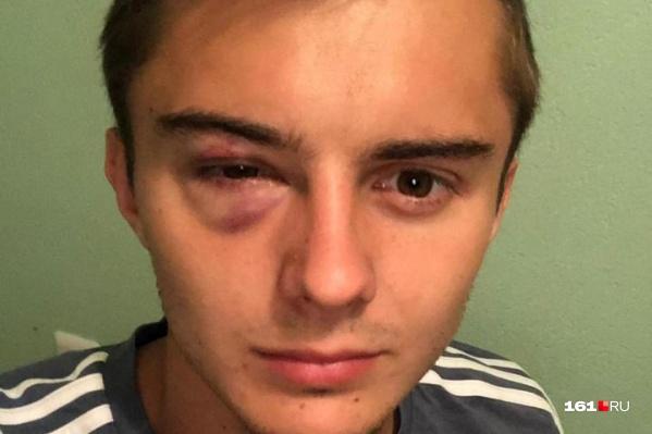 Футболист получил локтем в глаз