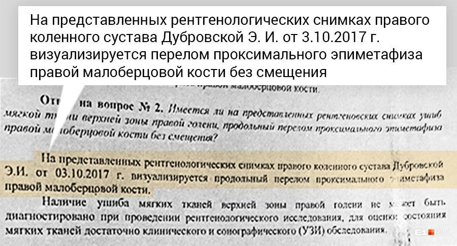 Повторная экспертиза, которую провели по требованию суда, показала, что у Элеоноры Дубровской был перелом