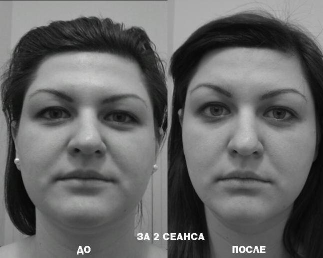Чикуров эстетическое мануальное моделирование лица и тела