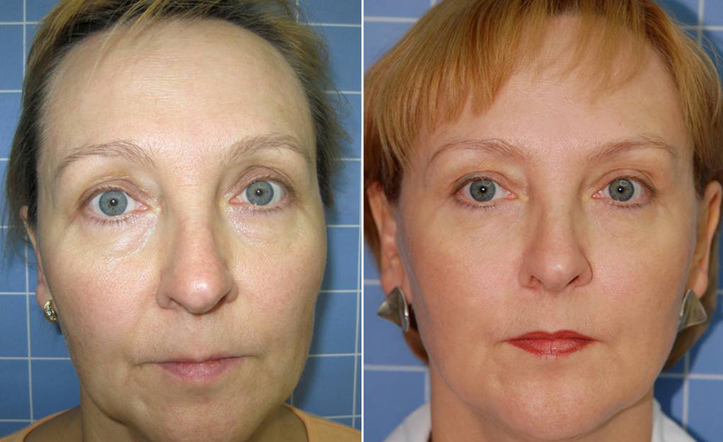 лазерное омоложение фото до и после