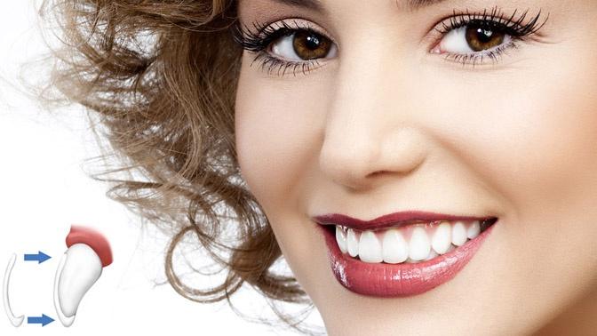 стоматологические виниры купить